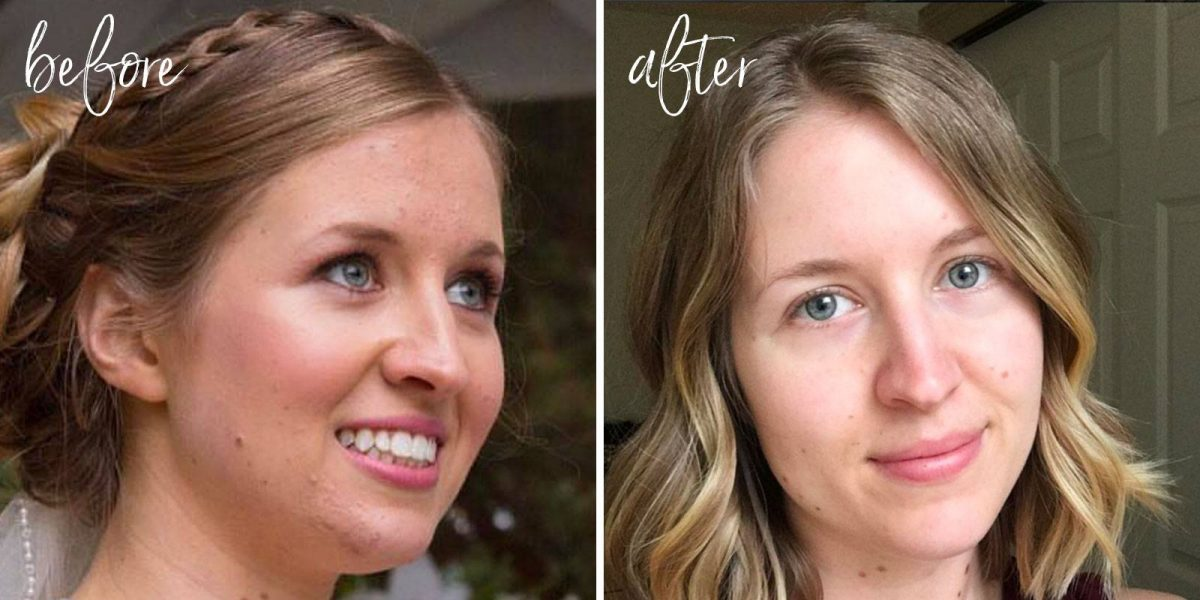 My Skin Story: How I Naturally Cleared Acne & Changed My Life for the Better (+ a FREE Checklist & Face Mapping Guide!)