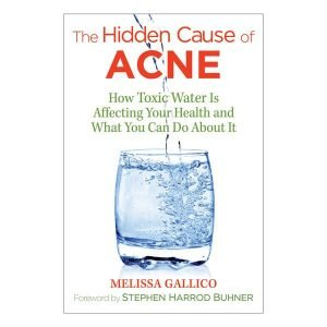 Hidden Cause of Acne